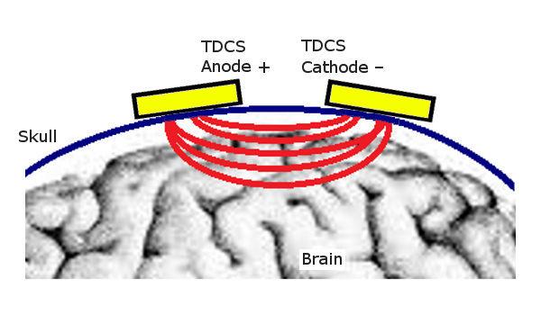 DIY: TDCS Transcranial DC Stimulator | Tao Currents - The ... Diy Tdcs Schematic on tdcs chart, tdcs brain, tdcs placement, tdcs device, tdcs plans, tdcs pcb, tdcs design, tdcs circuit, tdcs map,